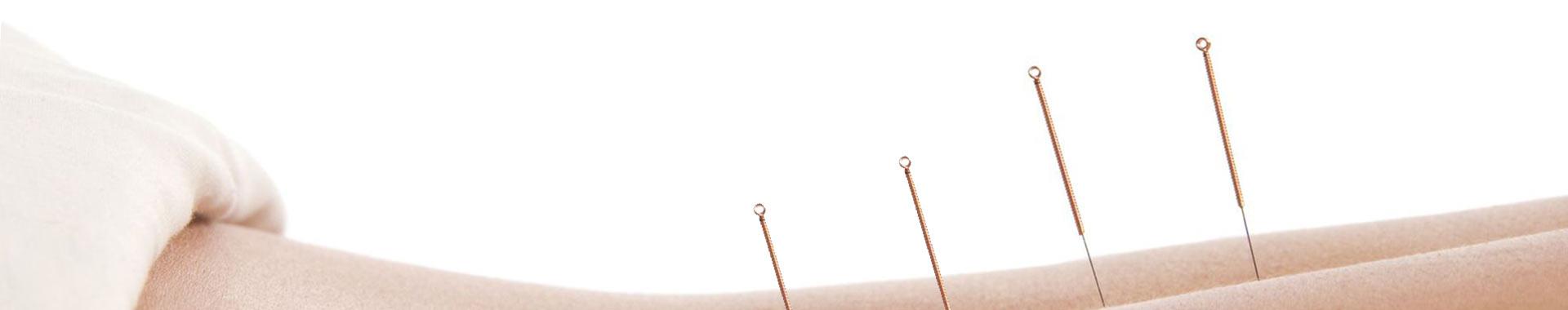 Akupunktur Mainz Wiesbaden